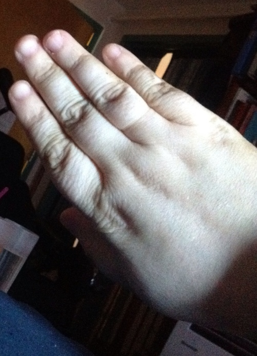 A pale hand showing four fingers with very short fingernails.